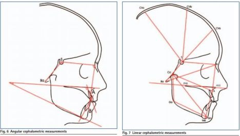 Cranial Measurments